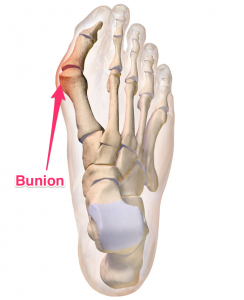 Bunion_joint_problem_brisbane