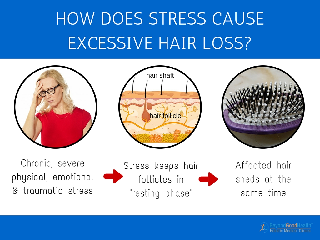 What causes hair to fall out from roots