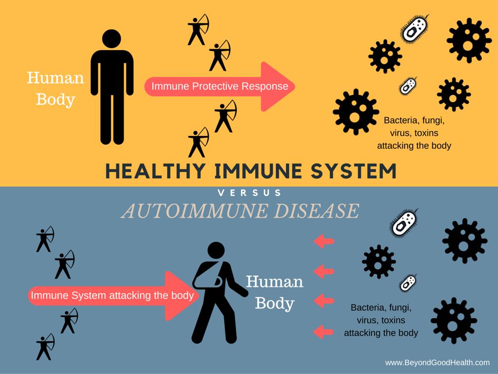 autoimmune disease alternative medicine practitioner brisbane